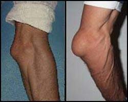 Бурсит локтевого сустава лечение